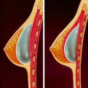 Aumento mediante prótesis mamaria
