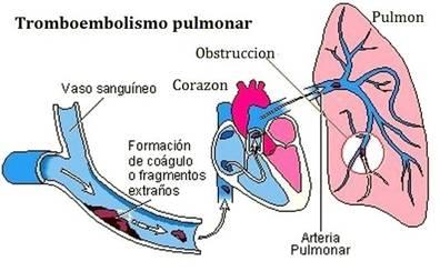 Tromboembolismo pulmonar en cirugía plástica: factores de riesgo, protocolos y recomendaciones